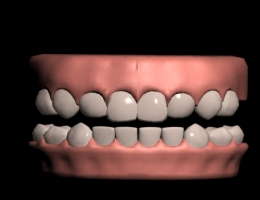 Teeth 3DS MAX MODEL